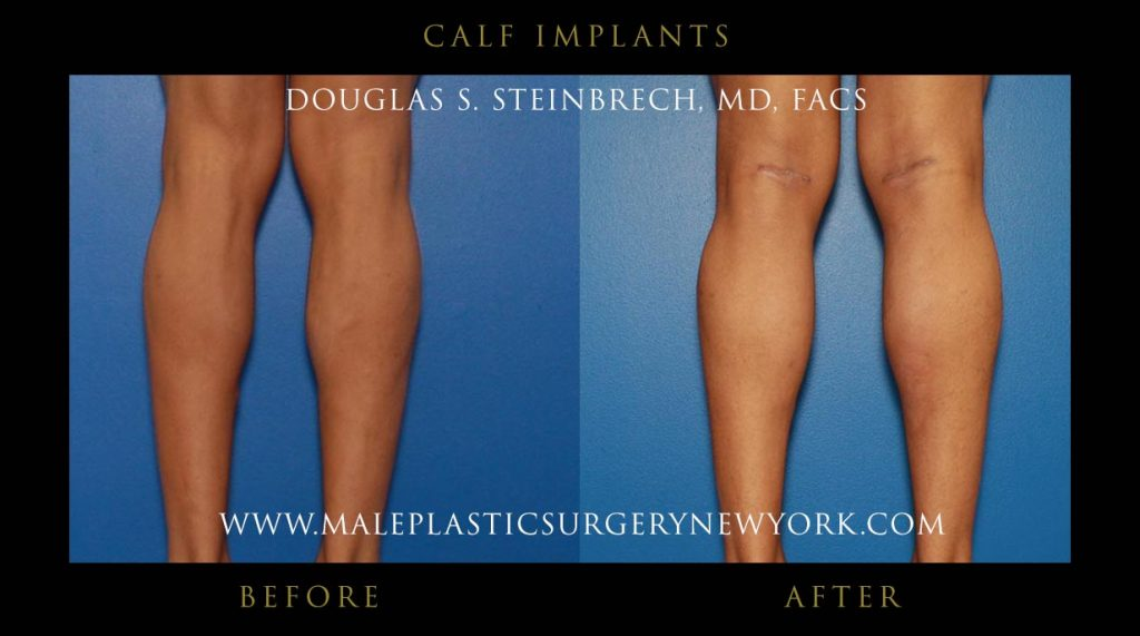 male calf implants surgery