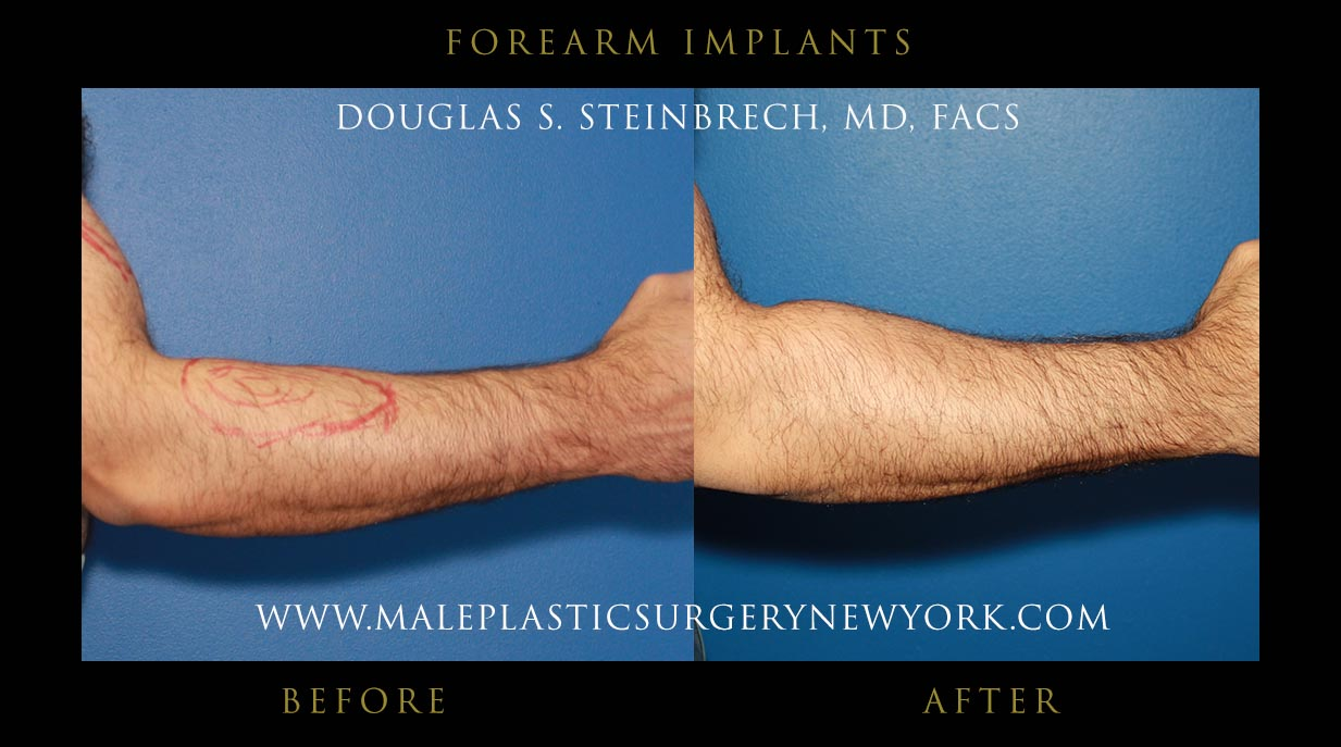 male forearm implants in chicago