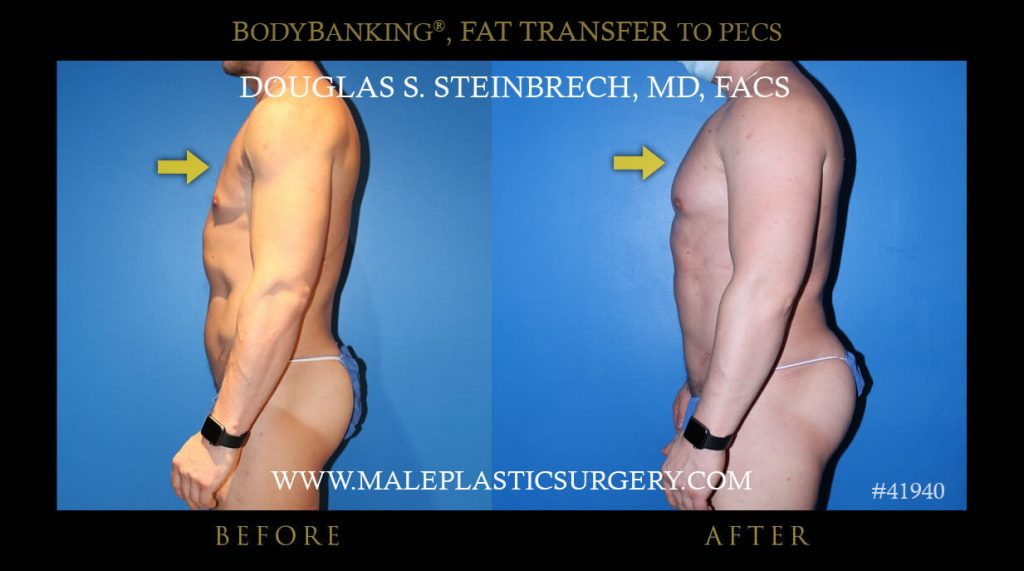 Male Pec Fat Transfer with BodyBanking