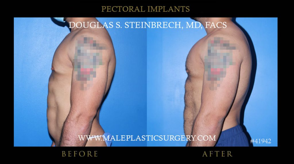 Male Pectoral Implants Before and After