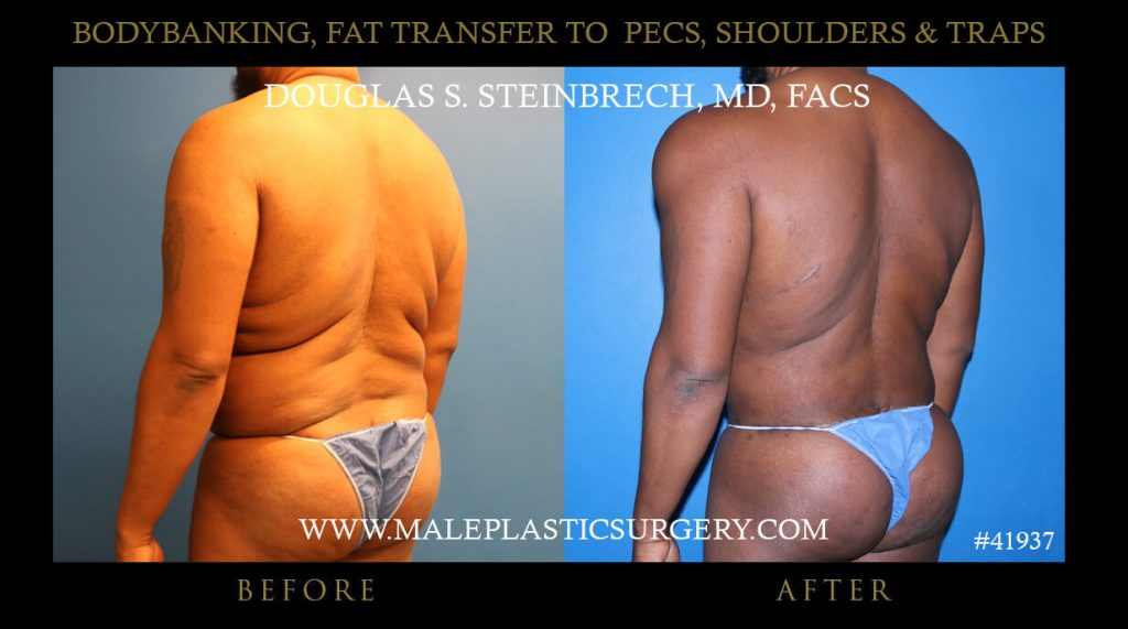 Male Pec,Shoulders & Traps Fat Transfer with BodyBanking before and after