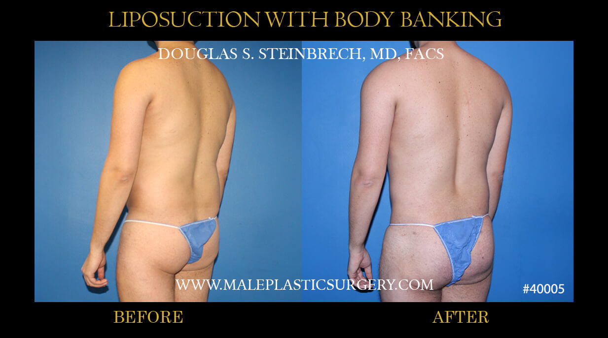 Male Lipo Suction with Body Banking Before and After