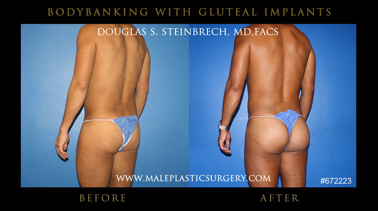 Male Gluteal (Buttock) Implants with Body Banking Before and After