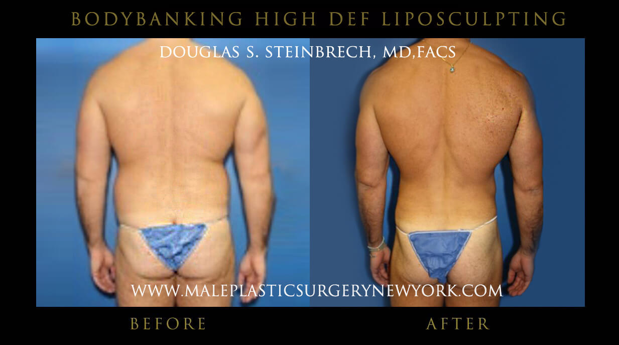 Male Body banking High Def Liposculpting Before and After