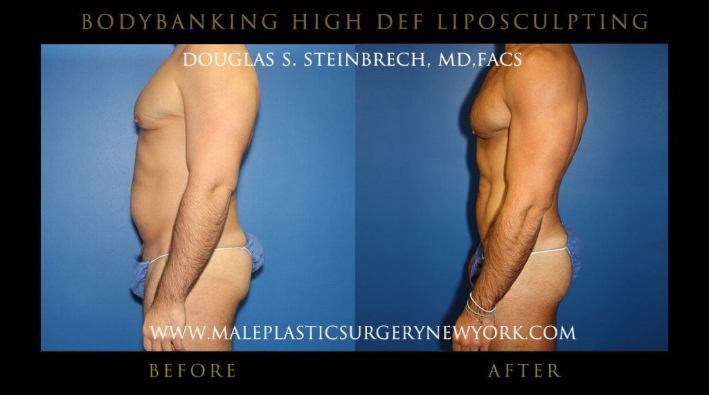 Male Bodybanking High Def Liposculpting Before and After