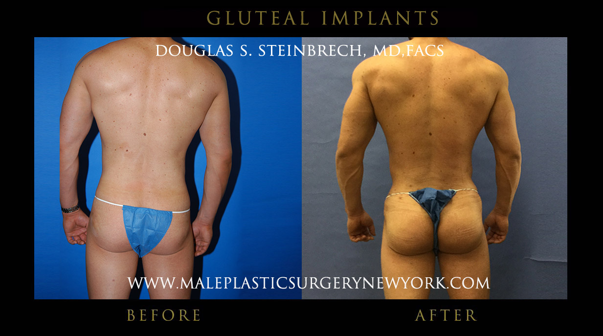 Male Gluteal (Buttock) Implants Before and After