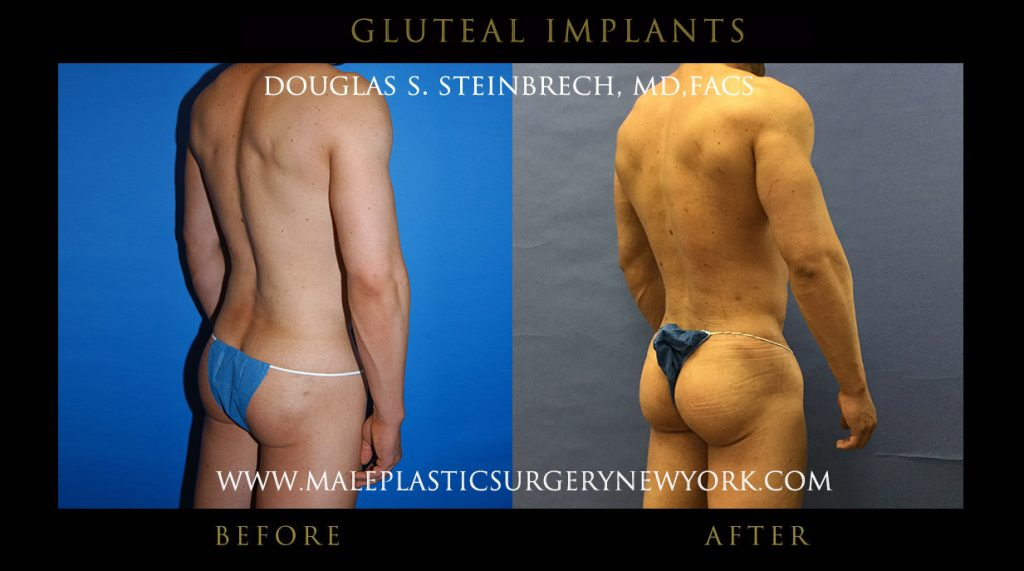 gluteal implants for men in chicago