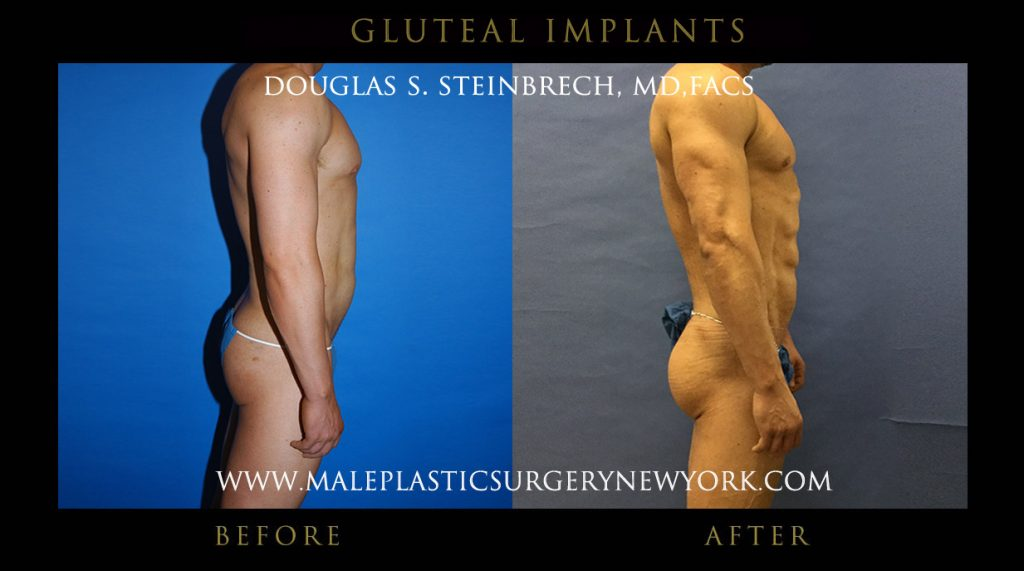 Male Buttock Implants Before and After