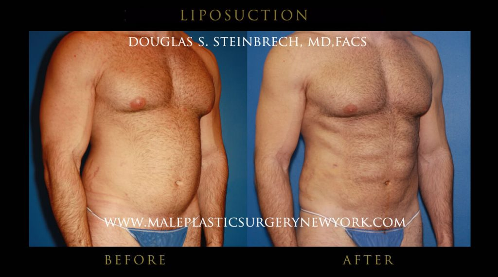 liposuction for men in chicago