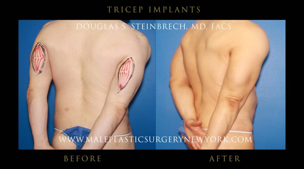 tricep implants for men