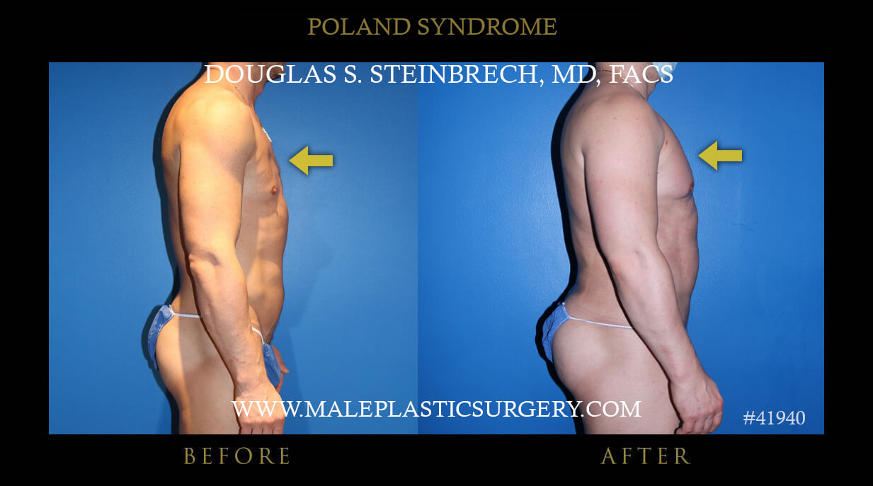 Male Poland Syndrome Before and After