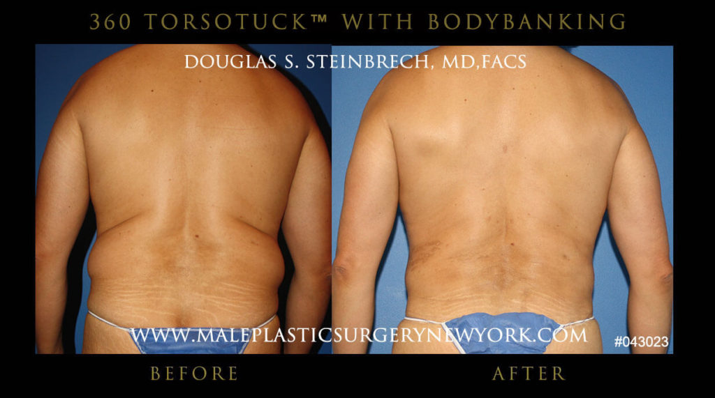Male Torso Tuck (Tummy Tuck) with Body Banking Before and After