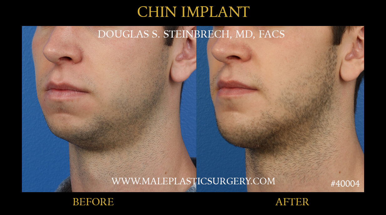 chin implant in miami