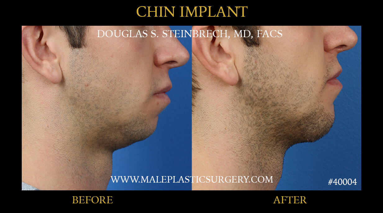 chin augmentation in miami