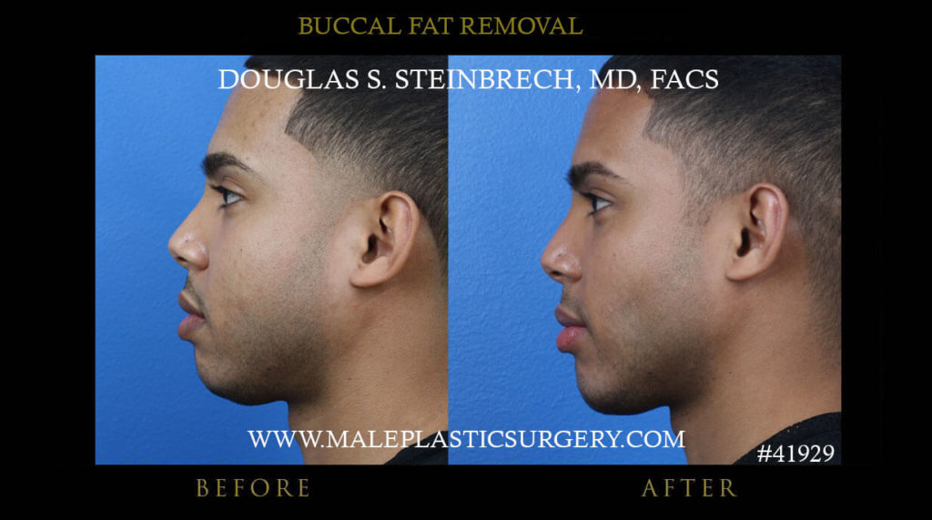 Male Buccal Fat Removal Before and After