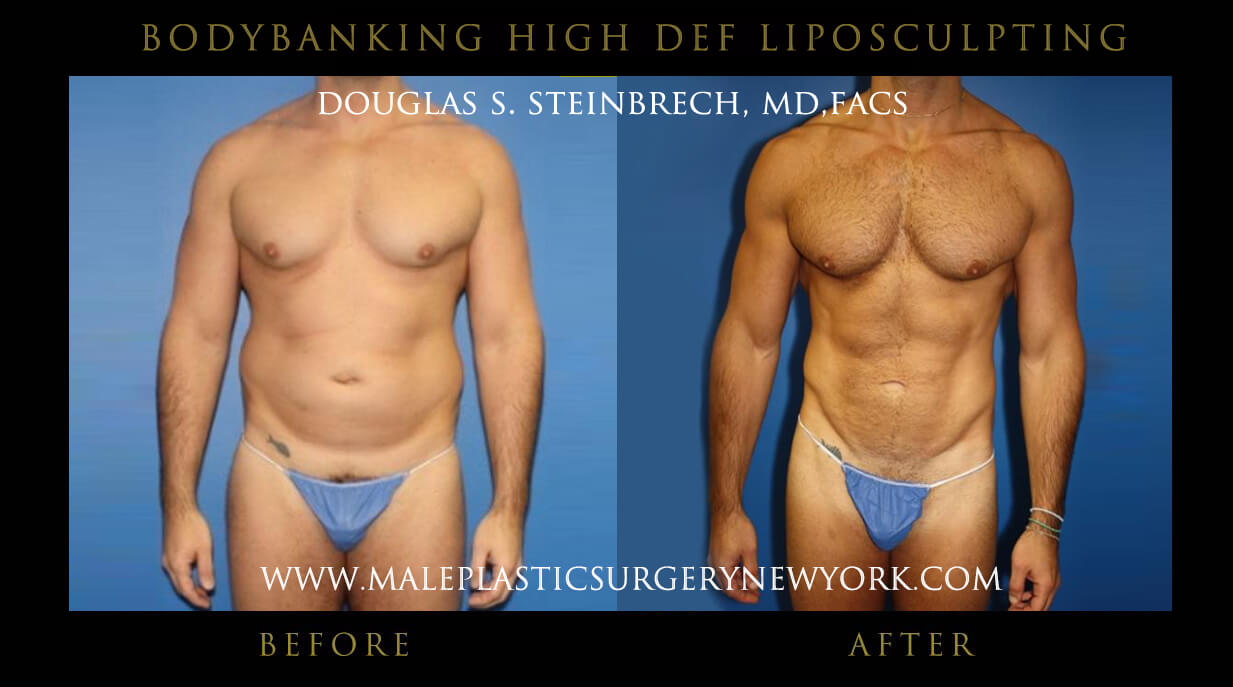 bodybanking after and before