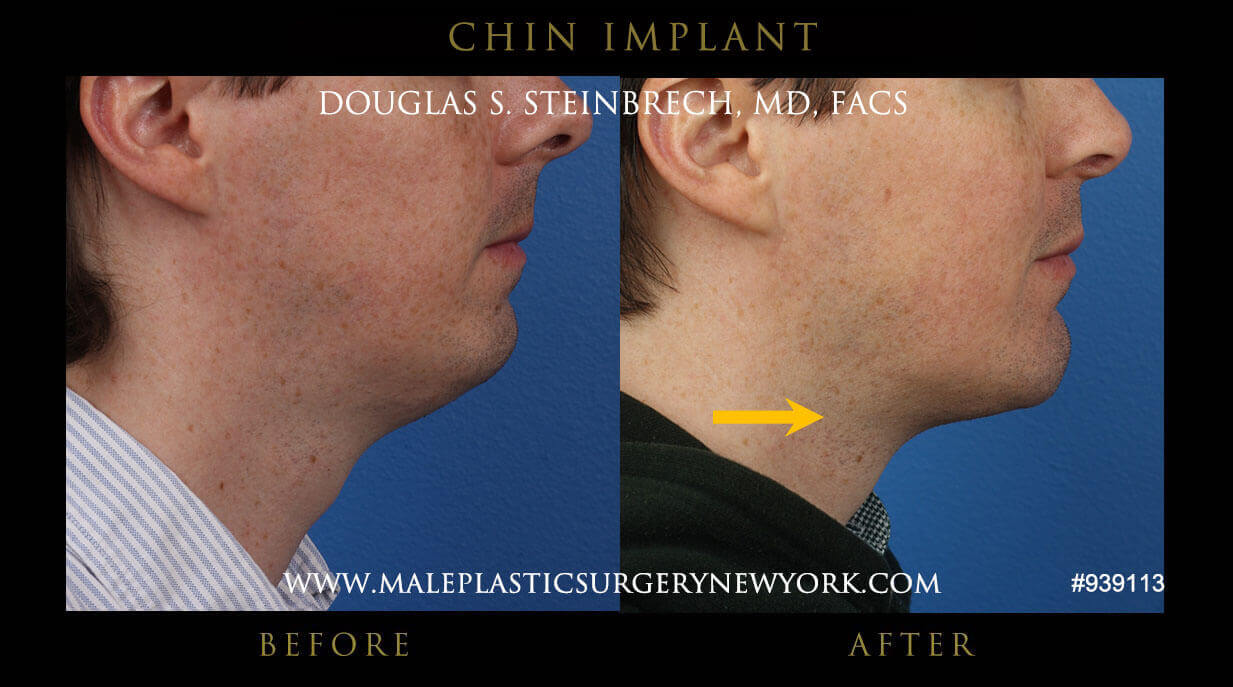 jaw & chin augementation before & after